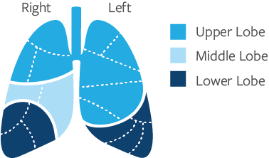 Lung Lobes and Segments
