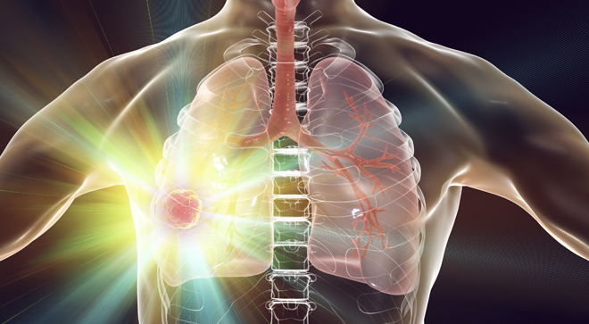 Educated Patient Lung Cancer Webinar focuses on trends, safety, and treatments