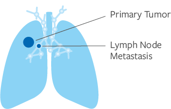 Stage 2 Lung Cancer