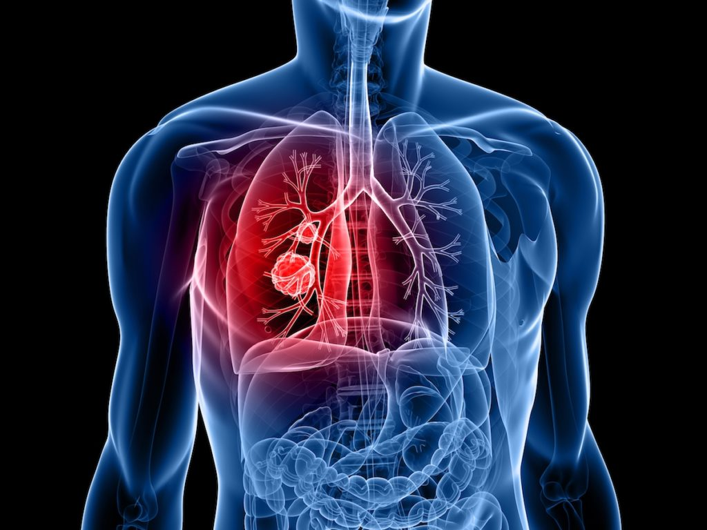 Diagram of Lung Cancer