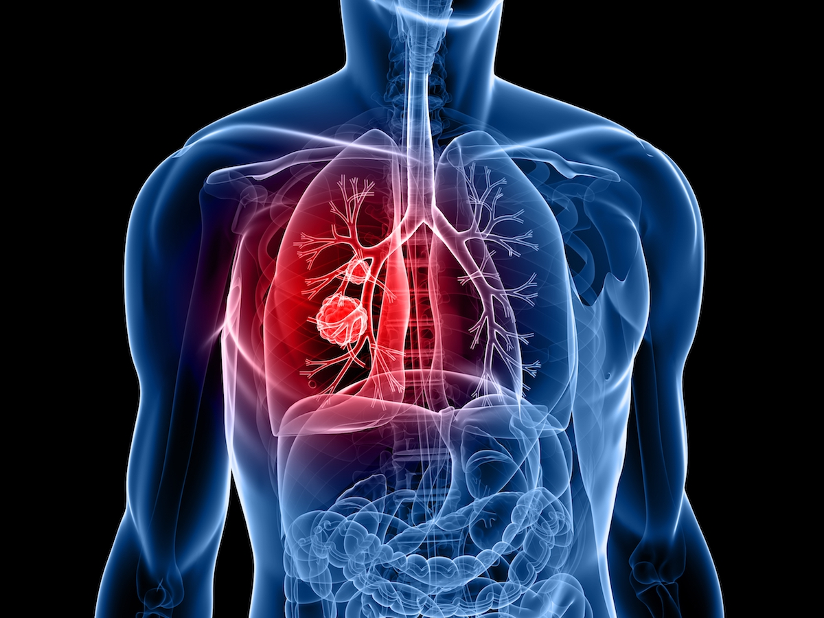 Lung cancer in the news
